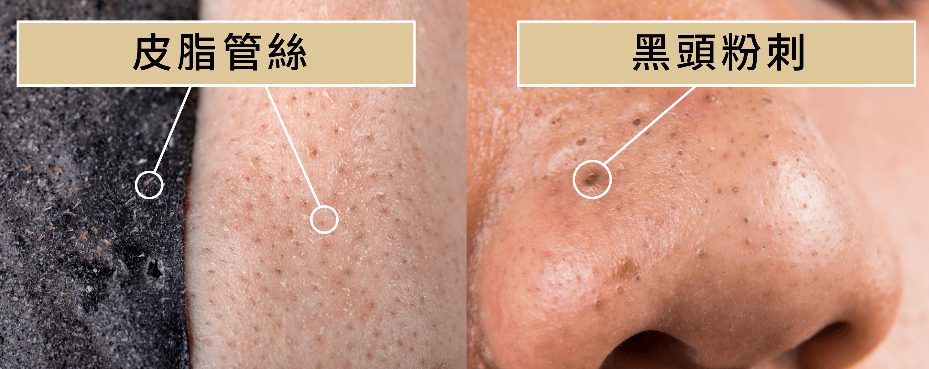 鼻子黑頭粉刺可以天天清嗎? 怎麼清比較好?